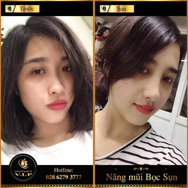 khach-nang-mui-boc-sun
