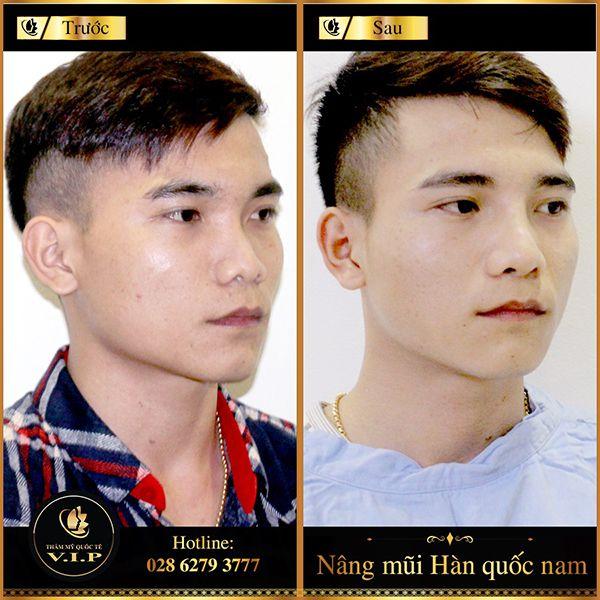 nang-mui-han-quoc-nam-1